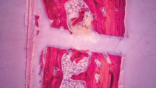 histological picture of a bone cut with PIEZOSURGERY®