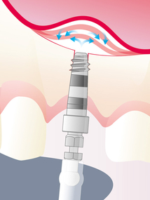 Sinus Physiolift® II - for a safe sinus lift crestal approach